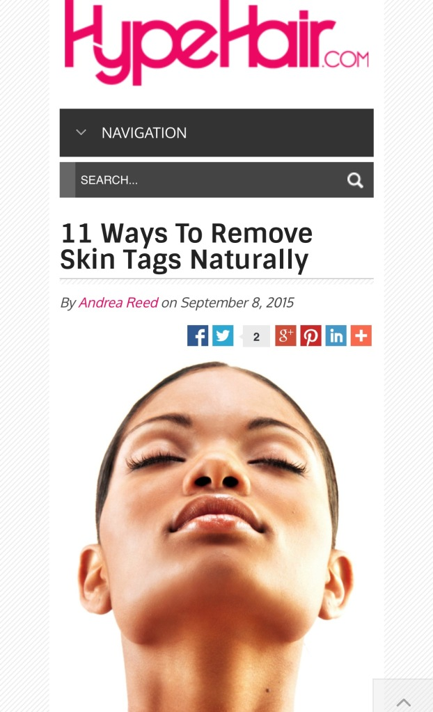 remove skin tags naturally